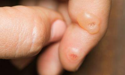 กรดซาลิไซลิกสามารถใช้กำจัดหูดที่ฝ่าเท้าได้อย่างไร?